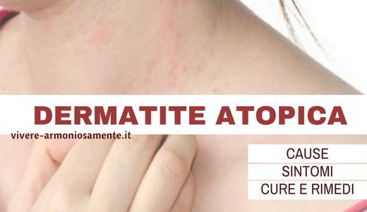 dermatite-atopica