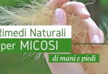 micosi-unghie-rimedi-naturali