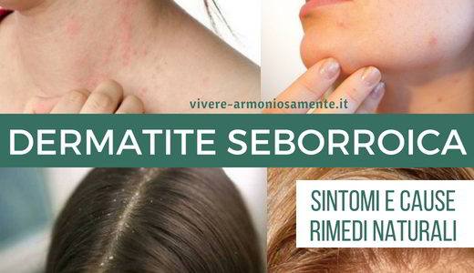 dermatite seborroica sintomi cause